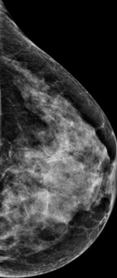 Immagine 2D: non si vede la lesione